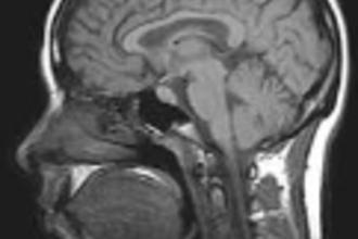 Medische toepassing: MRI