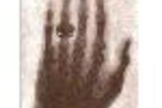 De röntgenfoto