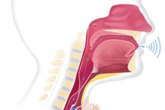 Elektrolarynx (HAVO examen, 2018-2, opg 5)