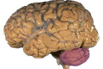 Elektronisch brein