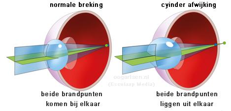 Cilindrische afwijking